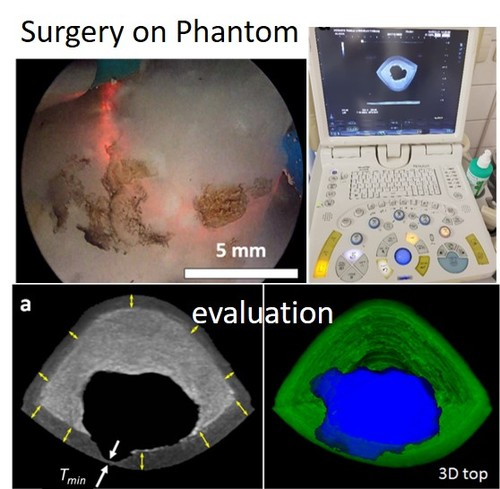 A High-Fidelity Phantom for the Simulation and Quantitative Evaluation of Transurethral Resection of the Prostate